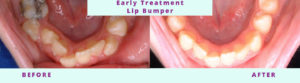 Early Treatment Before & After