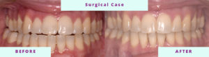 Surgical Before & After